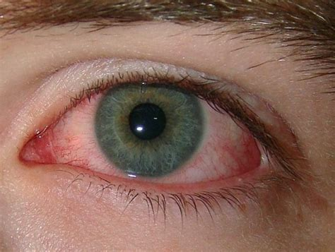 scratched eye symptoms home treatment and causes