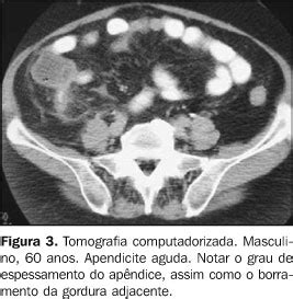 radiologia brasileira apendicite aguda achados na