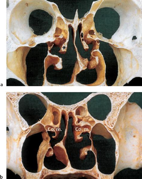coronal section of skull endoscopic anatomy of the nose and paranasal sinuses