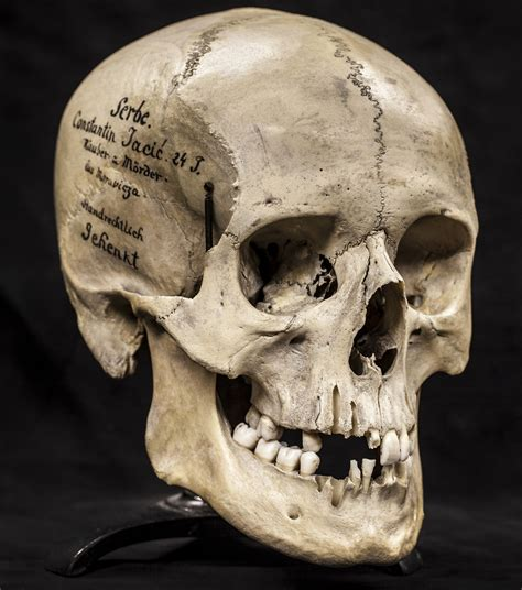 christmas gift ideas human skulls from the mutter museum