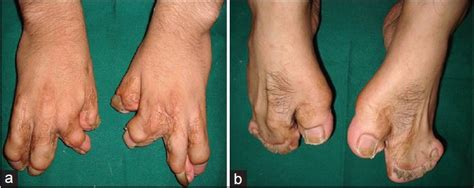 the hand of a patient with syndactyly of several digits apert s syndrome report of a rare case bhatia pv patel