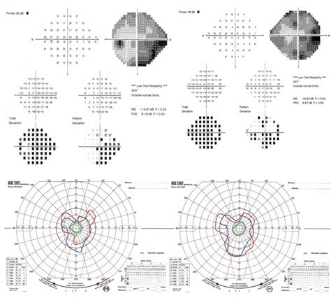 cloverleaf pattern visual field automated perimetry upper image in patient 1 shows a