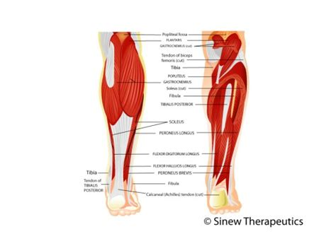 calf pain after c section lower leg pain and injuries information sinew therapeutics