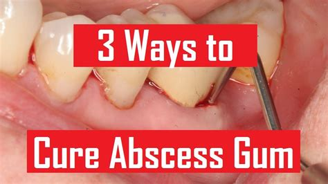 dental abscess how to get rid of an abscess gum home