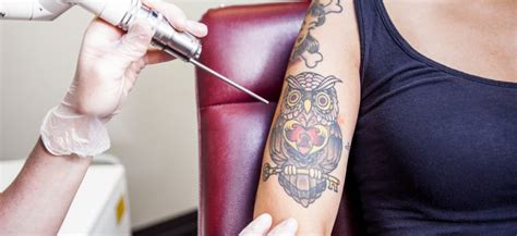 tattoo removal tips 5 tips when you go for a removal in calgary new