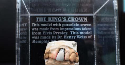 elvis tooth mold   display  britain shows