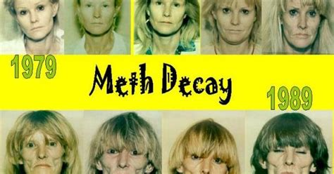 Meth Detox Stages by Meth Decay Addiction Uk