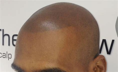 scalp micropigmentation for black men smp debate