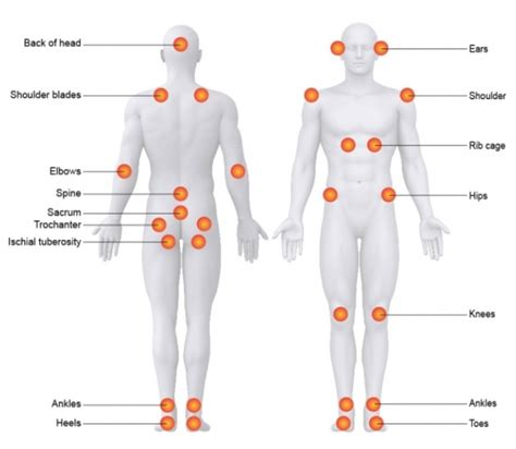 pressure ulcer points diagram common pressure sore areas pictures to pin on