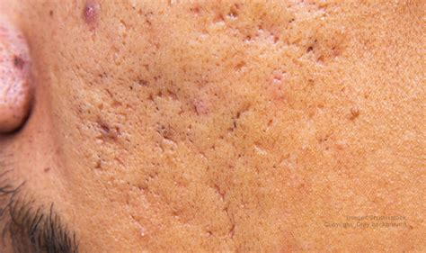 best acne scar best acne scar creams how to get rid of scars on fast