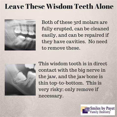 surgery dentist wisdom teeth