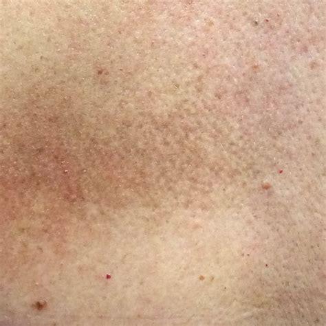 como eliminar manchas blancas en la piel y vitiligo como eliminar manchas blancas en la piel y vitiligo