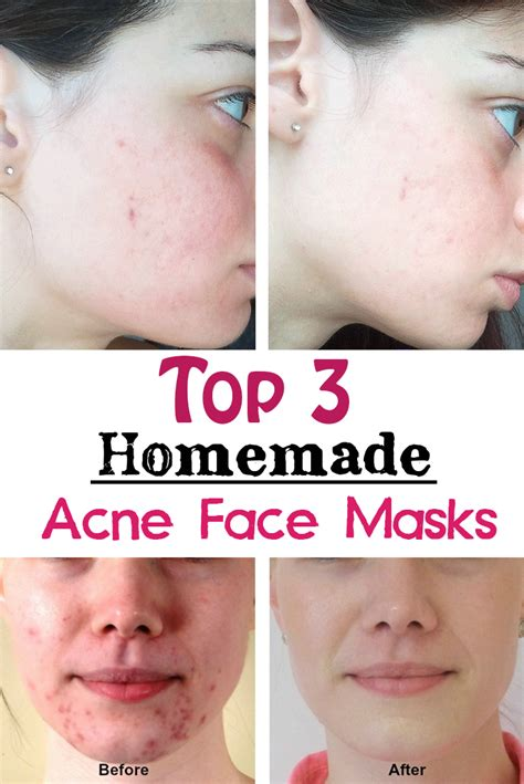 10 Best Home Made Masks by Mask For Acne Skin Ftempo