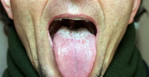 how to fix bad breath the cause of consistent bad breath how to fix it naturally althealthworks