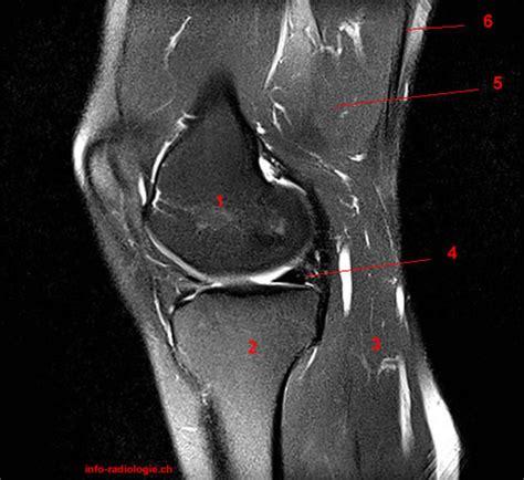corno posteriore menisco interno atlante di resonanza magnetica ginocchio
