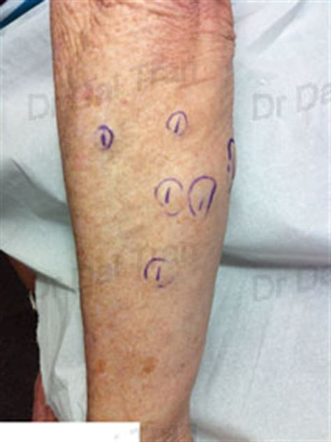 tattoo removal wollongong wollongong skin cancer skin surgery laser and cosmetic