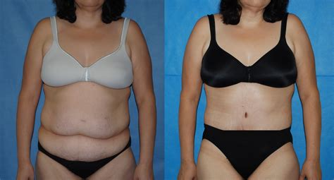 contouring following bariatric surgery and weight loss post bariatric contouring books abdominoplasty
