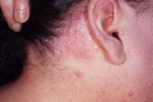 types of psoriasis causes symptoms treatment systemic