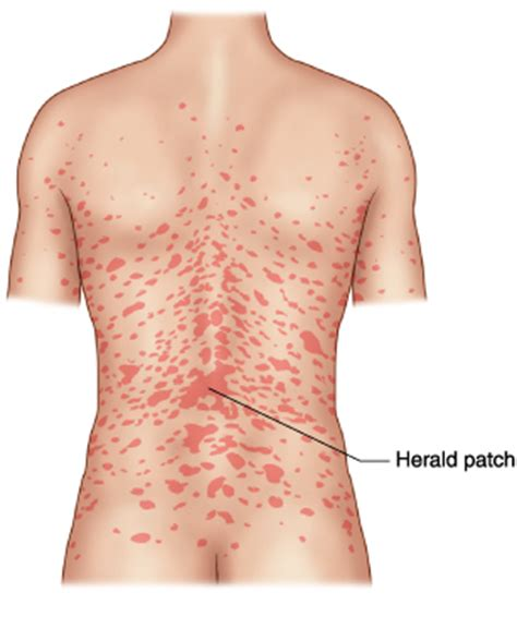 pityriasis rosea pictures causes symptoms and treatment