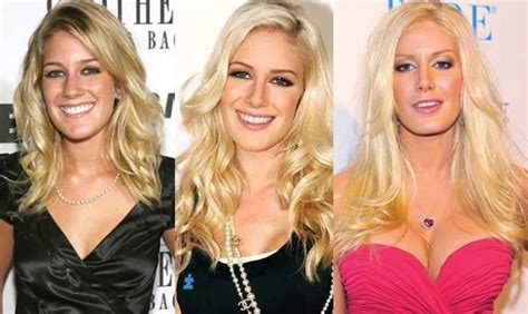 Heidi Montag Plastic Surgery by Heidi Montag Plastic Surgery Before And After Pictures 2016