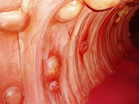 does a bloody bowel movement colon cancer