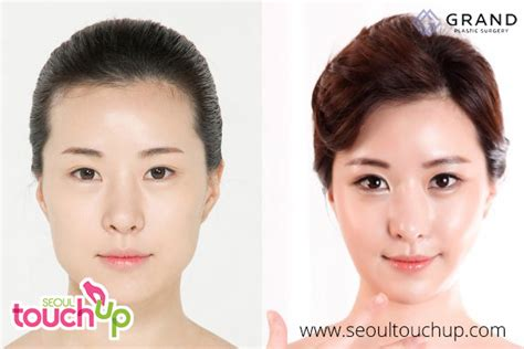 v shape jaw surgery advanced face contouring surgery seoul touchup
