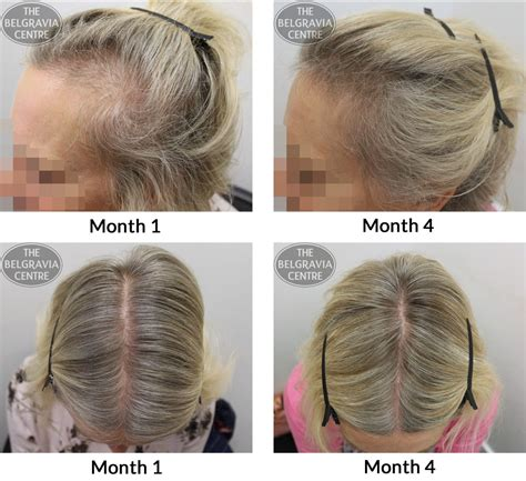 pattern hair loss female female pattern hair loss pictures photos