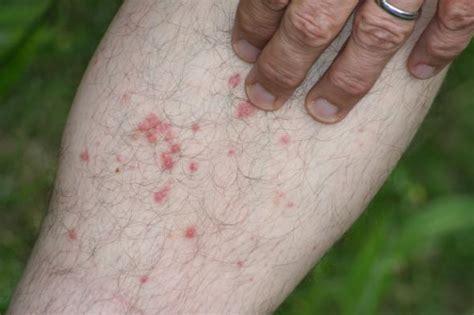 Grasmilben Stiche Milbenstiche Aus Der Wiese Grasmilben