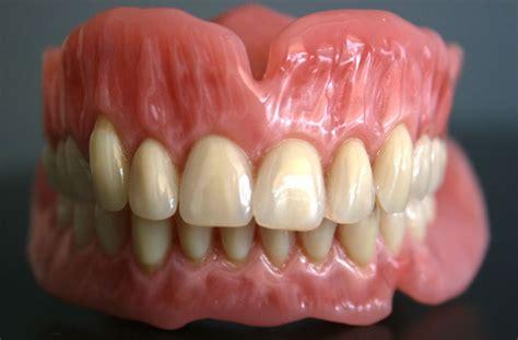 protesi dentali mobili realizzazione protesi dentali mobili laboratorio venti07