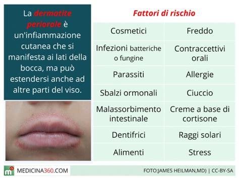 alimentazione dermatite seborroica dermatite periorale cause terapia e cure naturali