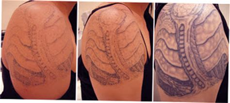 salabrasion tattoo removal procedures and side effects of removal ellecrafts