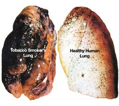 How To Detox Tobacco Damage by How To Cleanse And Purify Your Lungs In Just 3 Days