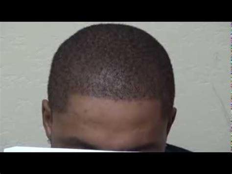 dr kieley hair restoration black african fue hair transplant after hairline