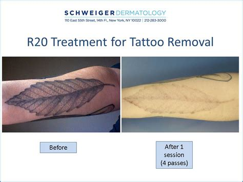 how successful is laser tattoo removal april 2017