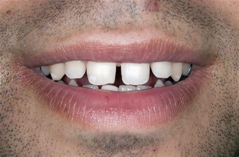 cabinet dentaire 18 nos cas cliniques du cabinet dentaire soudry 224 18