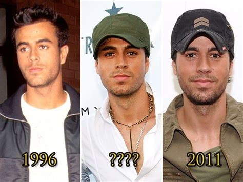 Enrique Didnt Up With by Plastic Surgery 11 You Didn T Had It