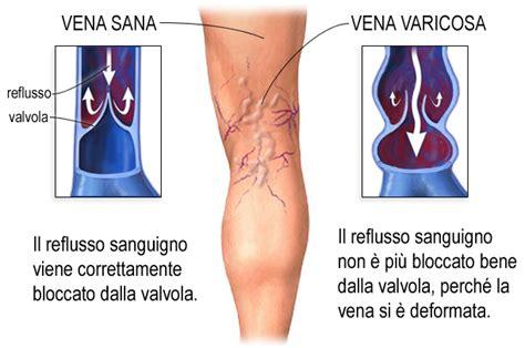 vasi arti inferiori varici delle gambe e chirurgia vascolare patologie di