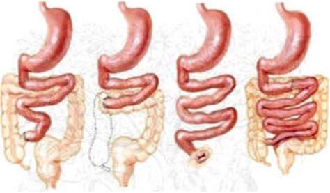 sindrome intestino corto il paziente operato e la sindrome da intestino corto