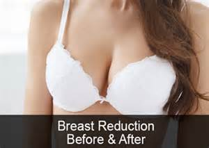 Breast Reduction They Work By Targeting The Fatty Cells And Tissue In The Mammary Glands Within The