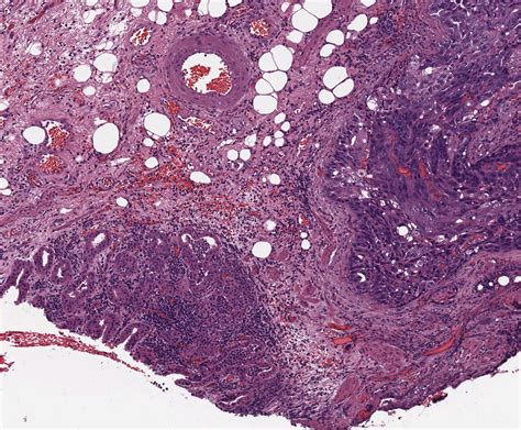 stomach cancer samples lab ally