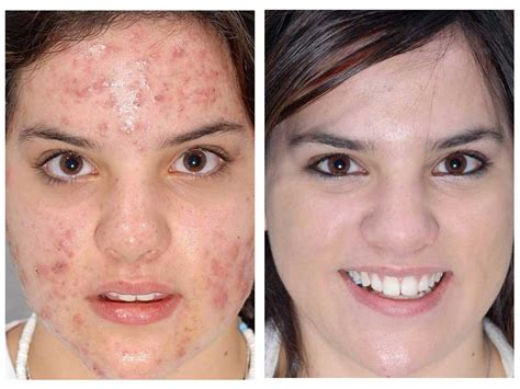 Prima Derma Whitening microdermabrasion before and after