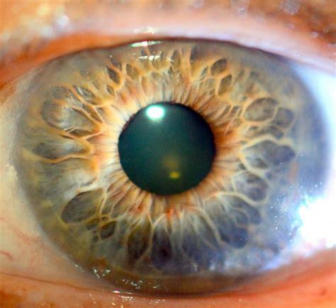 the basics of iridology 3 markings books iridology brio holistics
