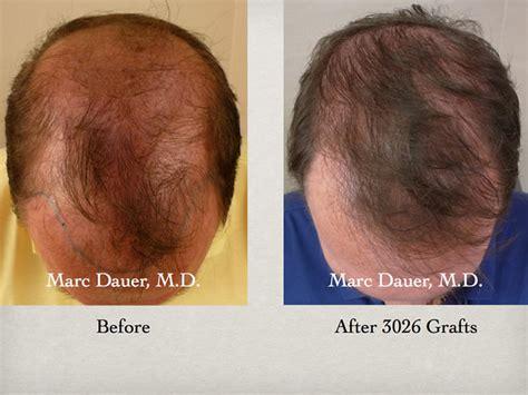 hair transplant america hair transplant america hair transplant videos los angeles