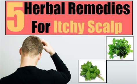 herbal remedies for itchy scalp how to treat