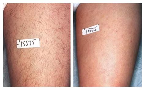 laser hair removal for light hair yourguidetoplasticsurgery com
