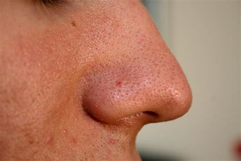 black head medical pictures info blackheads