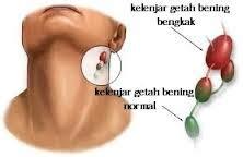 obat telinga berdarah obat kelenjar getah bening penyembuhan tradisional penyakit kelenjar getah bening