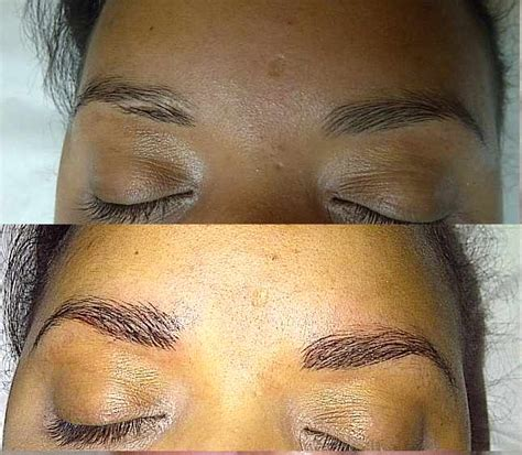 tattoo on keloid scar permanent makeup gallery before after pictures