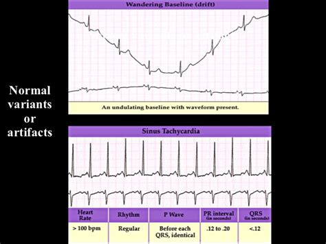 ecg tutorial online video ekg tutorial