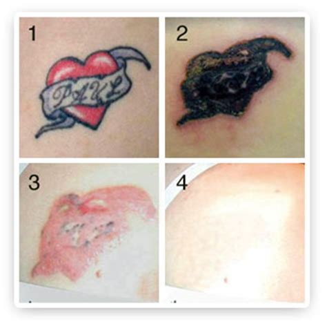 ipl laser tattoo removal q switched nd yag laser for removal pigment removal
